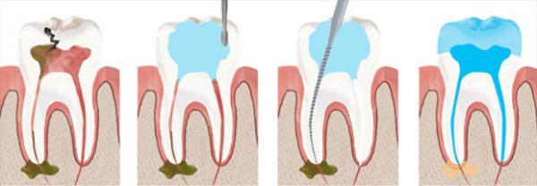 root-canal-large