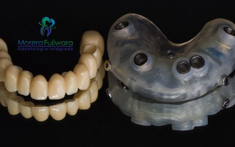 Computer Guided Dental Implants Costa Rica