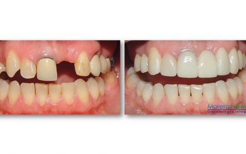 Before and After Dental Implants Costa Rica